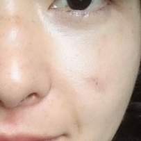 *开心*脸颊切疤40天啦!