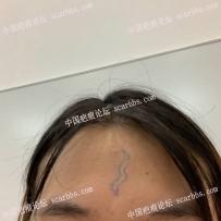 9月15陈立彬主任做的额头凹疤切除手术记录贴