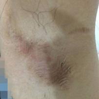 腋下疤痕可以去掉疤痕颜色吗  有治愈的经验朋友 来看看