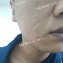 尋求面部凹陷疤痕治療方法