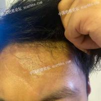 疤痕切除十个多月了。