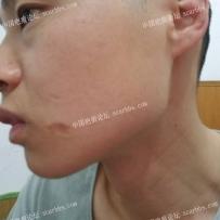 脸部凹陷疤痕求助大家如何治疗?