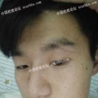 面部的疤痕,怎么去除,激光可以吗?