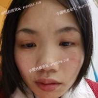 面部疤痕半年多了