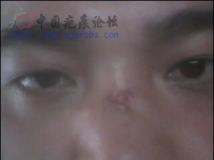 [贴图][原创]伤之疤