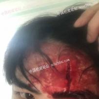 額頭疤痕7天拆線的效果,還可以去除和淡化嗎?