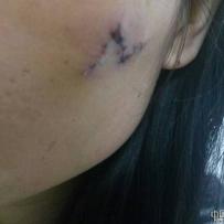 面部凹陷疤痕手术缝合,今天拆线了,感觉有点疼,而且有点宽