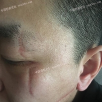 脸上多处长的凹陷疤痕如何治疗?