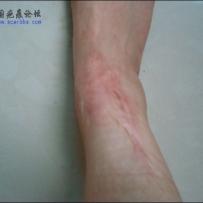 五岁时因为药物反应留下的疤痕