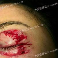 车祸被镜片严重割伤