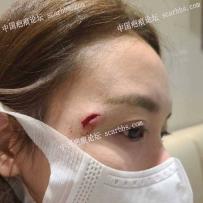 眼角旁撞伤縫了十幾針