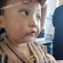 孩子嘴角疤痕,手术修复