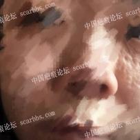 脸部小时候治疗血管瘤留下来的疤痕