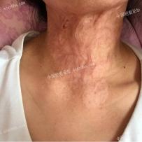 颈部烧伤疤痕,寻求最佳修复方案