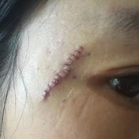 眼角手术已经12天了,找杨东运医生做的~