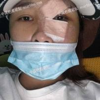面部胎记手术切除第五天