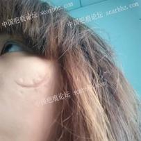 面部二十多年的缝合疤痕,如何修复?