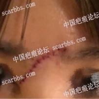 上海九院高振医生做的鼻梁疤痕切缝手术