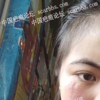 面部凹陷疤痕能手術祛除嗎?