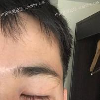 面部疤痕,记录:2017.12.21武晓莉医生手术