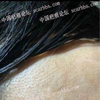 额头10多年的凹陷疤痕,该如何修复?