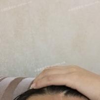 额头疤痕治疗一年后
