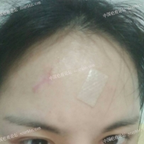 额头缝针疤痕,如何避免色脱和色沉