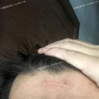 额头撞伤已经三四个月了,求助怎么恢复
