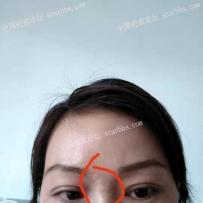 眉毛到鼻子中间的凹陷疤痕切缝3个月