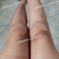 膝盖切缝色素很明显
