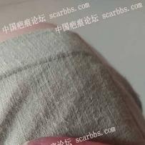手指指端植皮周围开始有一圈像小水泡,是不是开始瘢痕增生了