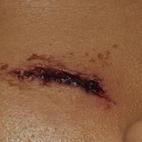 腮部被钢筋划伤,会不会留疤啊