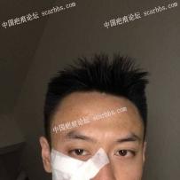 面部疤痕手术切除经验分享