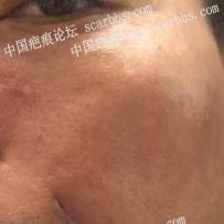 面部瘢痕手术切缝