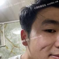 10月21日上海九院刘伟手术切缝脸上凹陷疤痕