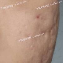 这种凹陷疤痕怎么改善?