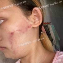 面部的手术疤痕,你们看一下增生了吗