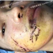车祸手术脸上10厘米增生疤痕,怎么抗疤?