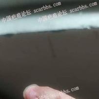手指端被化学品烧伤植皮,四周处增高