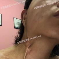 颈部小时候热水烫伤,植皮疤痕,怎么治疗?