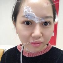 上海九院找刘伟做激光记录贴