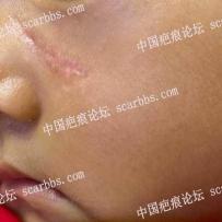 脸部手术后一个月,这个疤正常吗