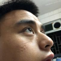 面部手术疤痕,能不能修复好