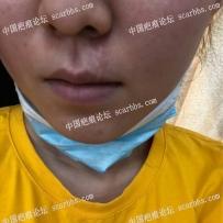色素疤痕,去年八月已在重庆杨东运医生那做了
