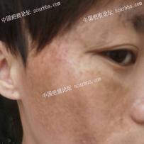 面部十多年的烧伤疤痕,有什么好的治疗