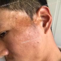 烫伤疤痕已经二十年了求治疗的好方法。