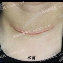 颈部增生疤痕术后6个月效果分享