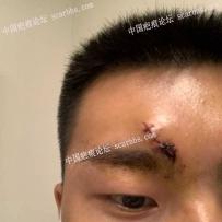 記錄我額頭抗疤過程,從縫針開始