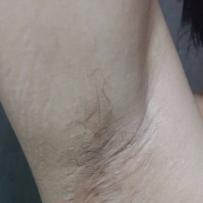 疤友们,麻烦看下像我的这种腋下疤痕怎么治疗!
