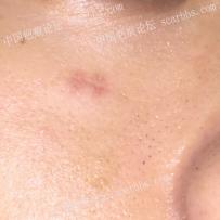 面部的割伤疤痕二周了,疤痕有点硬在用美皮护